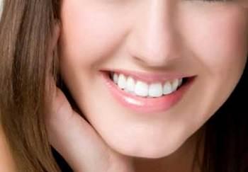 笑顔 インプラント